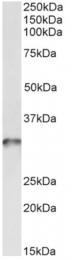 AP33349PU-N - Tropomyosin-4 (TPM4)