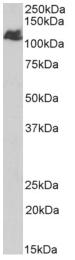 AP33363PU-N - BMPR2