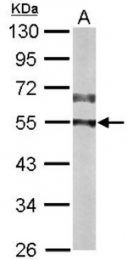 AP33387PU-N - CAMK2D