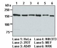 AP33390PU-N - Early endosome antigen 1