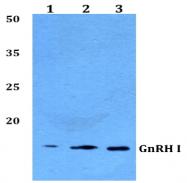 AP33395PU-N - GNRH1 / Progonadoliberin-1
