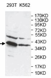 AP33398PU-N - Arginase-2