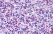 AP33399PU-N - fMLP receptor