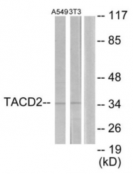 AP33403PU-N - TACSTD2