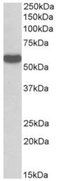 AP33408PU-N - C22orf28