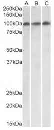 AP33409PU-N - VPS16