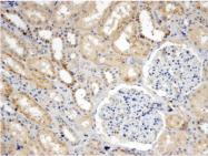 AP33411PU-N - Sorting nexin-8 (SNX8)