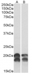 AP33435PU-N - NDP kinase A