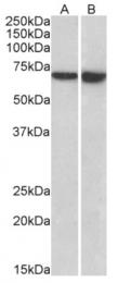 AP33436PU-N - Plastin 2 / LCP1