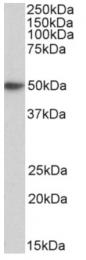 AP33438PU-N - FCER1A