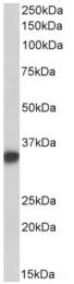 AP33440PU-N - CD74