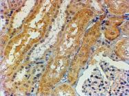 AP33443PU-N - Tensin-1 / TNS1