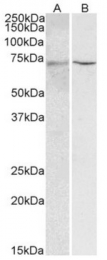 AP33462PU-N - HNF1 alpha / TCF1