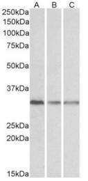 AP33467PU-N - GNB2L1 / HLC7