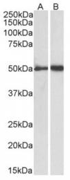 AP33470PU-N - Fibrinogen gamma chain
