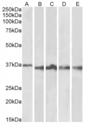 AP33481PU-N - Aurora kinase B