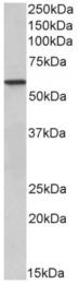 AP33492PU-N - Epoxide hydrolase 2 / EPHX2