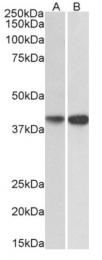 AP33495PU-N - Nuclease EXOG