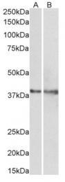 AP33498PU-N - Isocitric dehydrogenase gamma / IDH3G