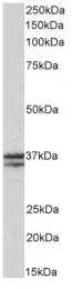 AP33501PU-N - Skeletal muscle Troponin T