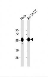 AP33519PU-N - Calreticulin