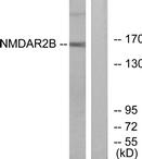 AP39024PU-N - NMDAR2B