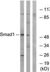 AP39026PU-N - SMAD1