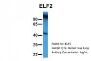 AP42047PU-N - ELF2 / NERF
