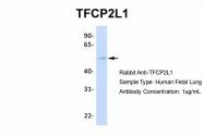AP42072PU-N - TFCP2L1