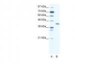AP42123PU-N - ZNF621