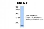 AP42164PU-N - RNF138