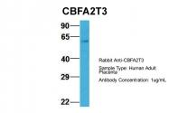 AP42251PU-N - CBFA2T3