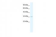 AP42287PU-N - Tristetraproline (TTP)