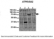 AP43239PU-N - ATP6V0A2