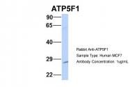 AP43551PU-N - ATP5F1