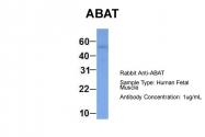 AP43781PU-N - ABAT
