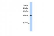 AP44955PU-N - ATP6V0D2