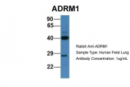 AP45931PU-N - ADRM1 / GP110
