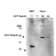 AP46105PU-N - RAB35 / RAB1C
