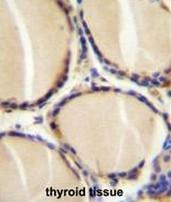 AP50713PU-N - CGRP / CALCA