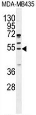 AP50806PU-N - Cyclin B1