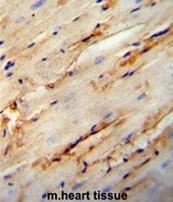 AP51017PU-N - Collagen type V