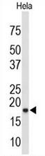 AP51031PU-N - COX IV isoform 1