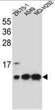 AP51035PU-N - Complex IV subunit VIb