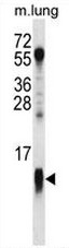 AP51036PU-N - Complex IV subunit VIIa