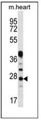 AP51091PU-N - Beta-crystallin A3