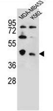 AP51116PU-N - CTBP1