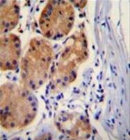 AP51124PU-N - Catenin beta-1