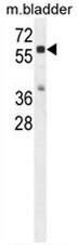 AP51129PU-N - Cathepsin A