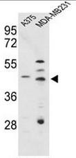 AP51130PU-N - Cathepsin D